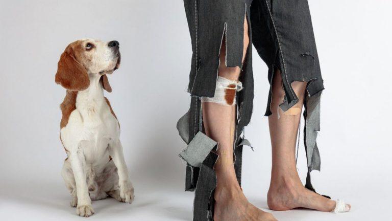 dog bite infectious diseases