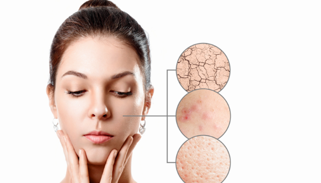 Sensitive Skin: Symptoms and Signs