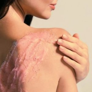 Must Try: 5 Easy Tips for Back Acne Treatment!