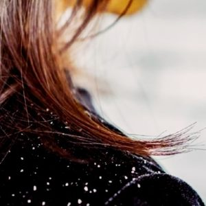 6 Causes of Dandruff: Weather Effects to Fungus Problems!