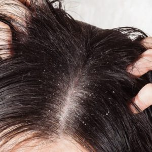 5 Super Easy Home Remedies to Get Rid of Dandruff